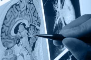 Radiografie cervello